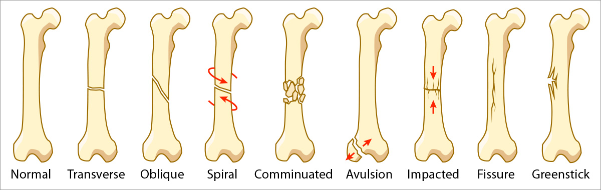 bone spiral fracture Toe and metatarsal fractures (broken toes) the structure of the foot is complex, consisting of bones,  what is a fracture a fracture is a break in the bone.