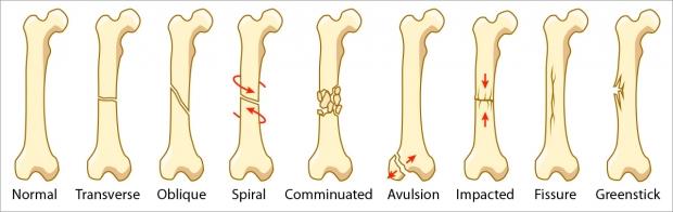 Bone fracture types.